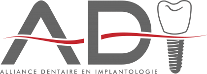 Alliance Dentaire en Implantologie